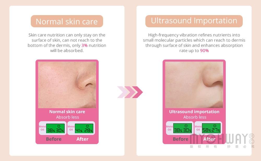 ultrasound importation