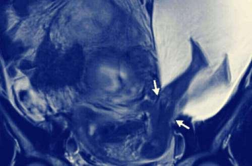 Radiografía de un bebé