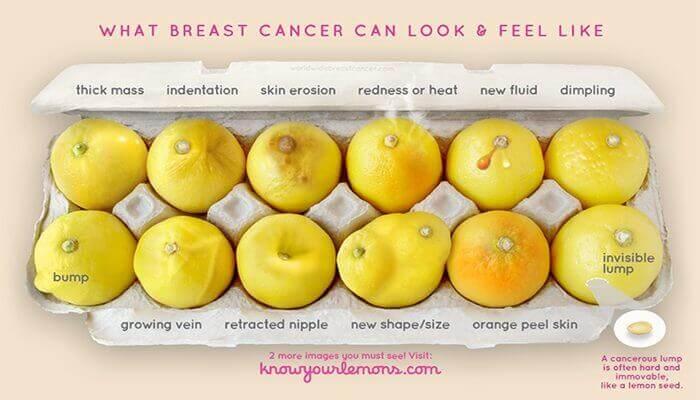 cáncer precoz de mama