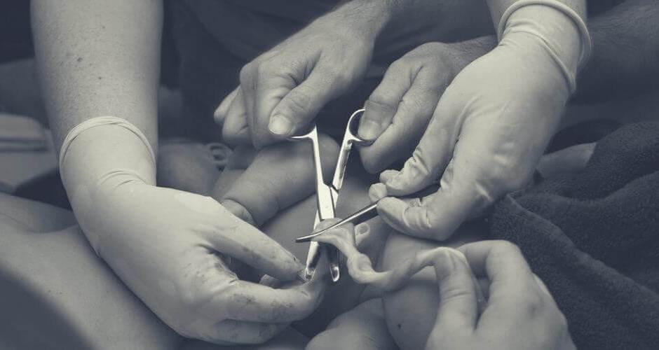 corte tardío del cordón umbilical