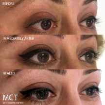 Eyeliner tattoo with a flick, before, immediately after and healed.