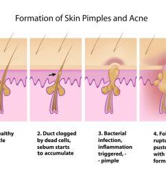 how to choose makeup that won t clog pores my cozy room acne clogged pores diagram clogged pores diagram [ 1024 x 819 Pixel ]