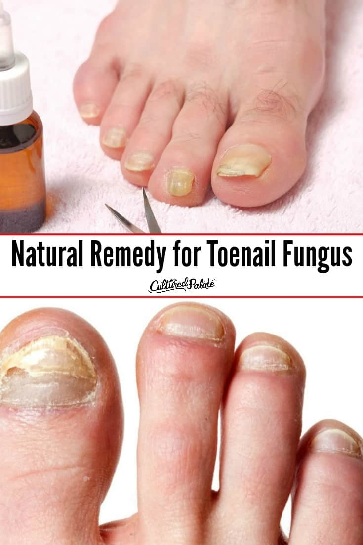 Toenail Smells Like Cheese : toenail, smells, cheese, Natural, Remedy, Toenail, Fungus, Cultured, Palate