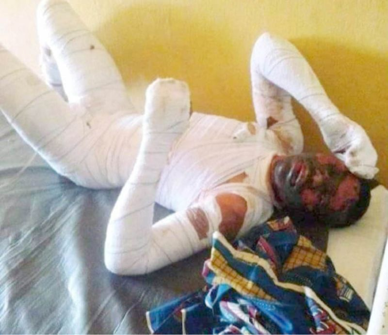 Before his death Chidinma Onah battled his injuries from the
