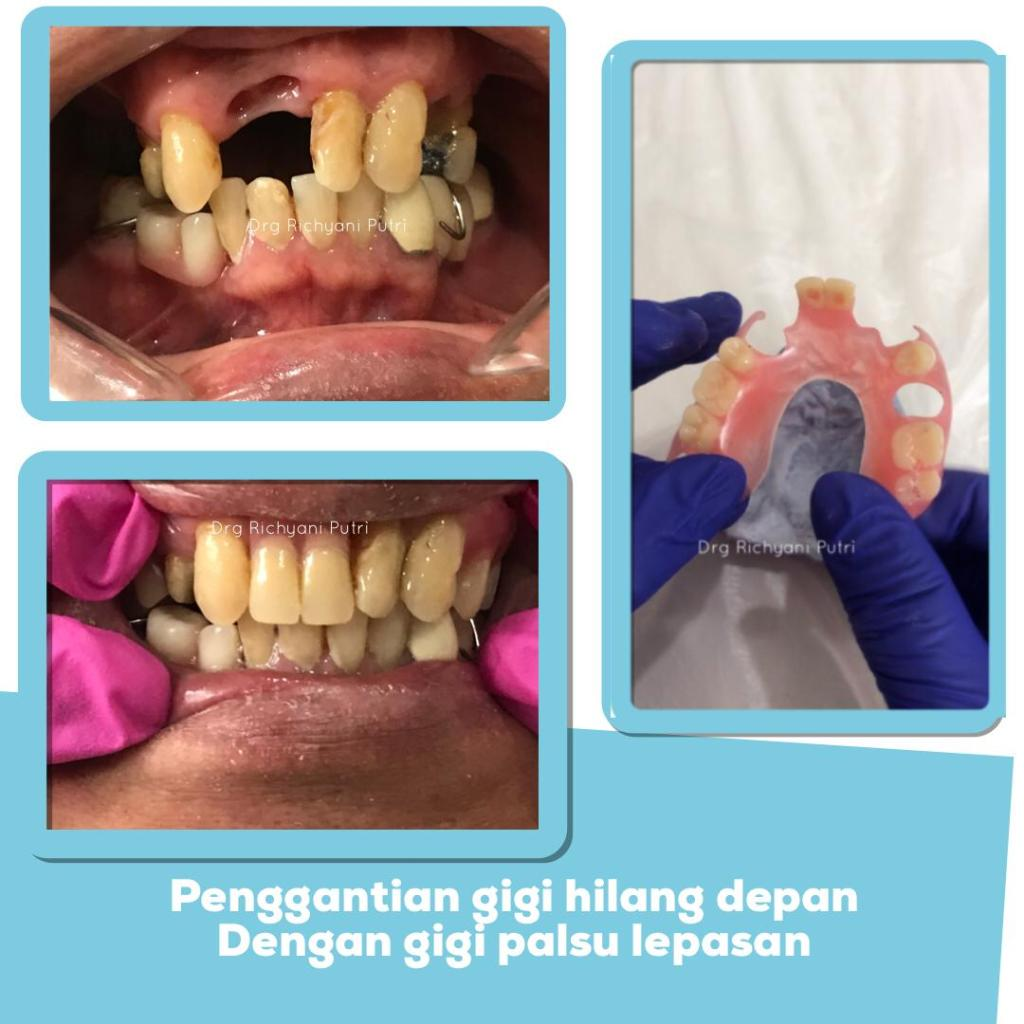 Penggantian gigi hilang depan dengan gigi palsu lepasan