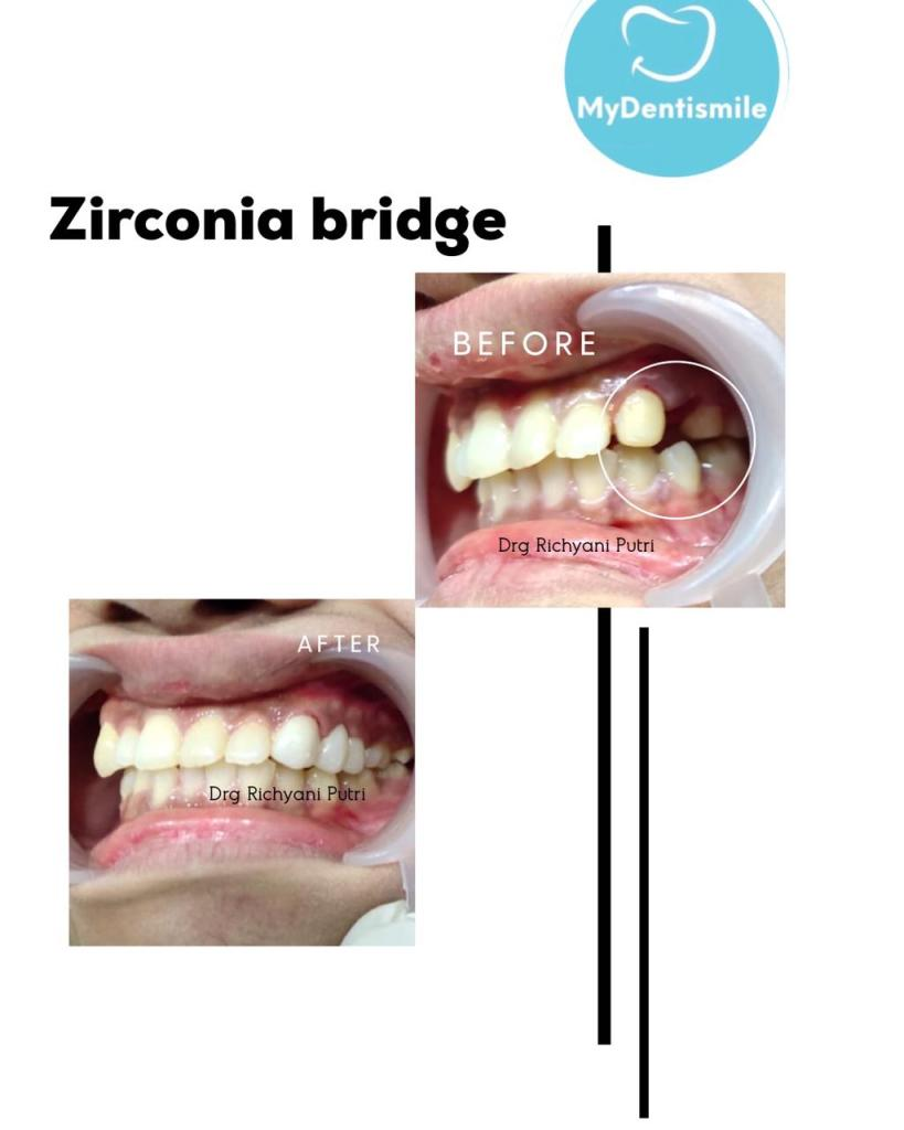 Zirconia Bridge
