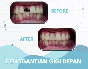 Penggantian gigi depan