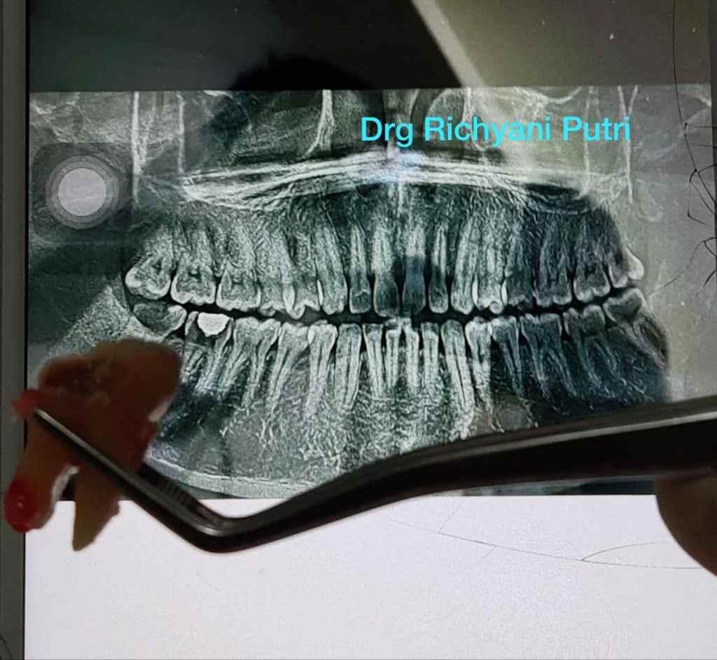 ronsen gigi