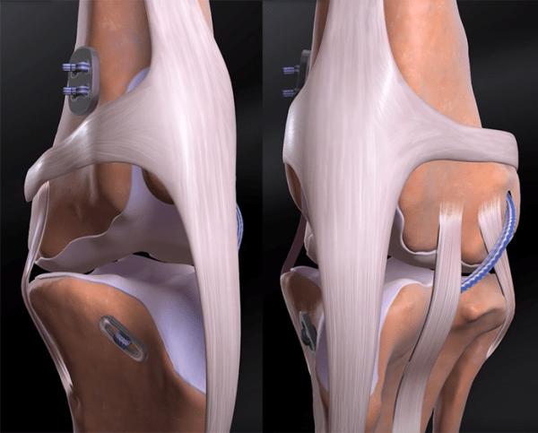 CCL Tears TightRope Repair