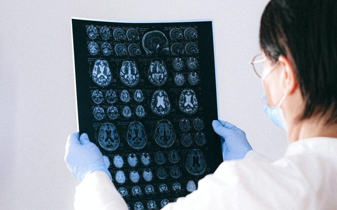 The Glymphatic System's Potential Link to Alzheimers