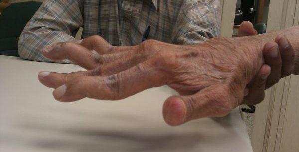 Swan_neck_deformity_in_a_65_year_old_Rheumatoid_Arthritis_patient-_2014-05-27_01-49