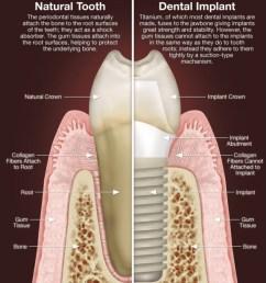 dental implants oasis dental care flagstaff az [ 1150 x 1280 Pixel ]