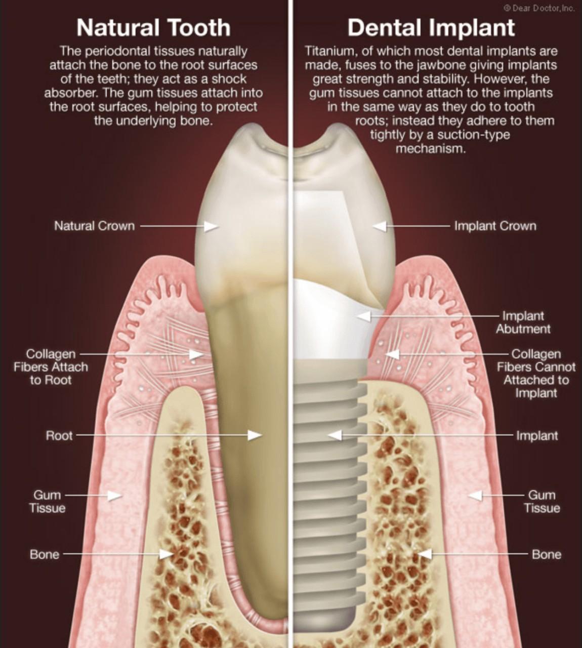 hight resolution of dental implants oasis dental care flagstaff az