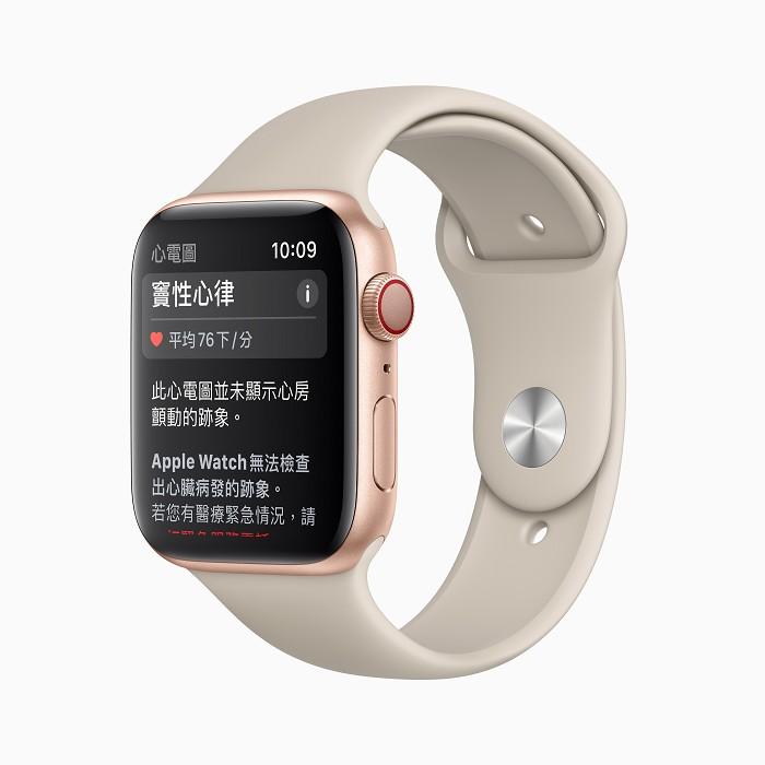 Apple Watch Series 4 與後續錶款上的「心電圖」app 會將心律分為 AFib、竇性心律、低或高心率或不確定