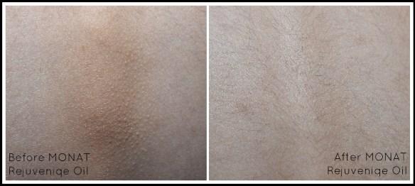 Rejuvenate Skin