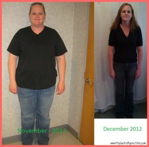 Before and After Photos Gastric Bypass