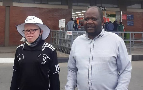 Pick n Pay Apologizes for the Albino Incident