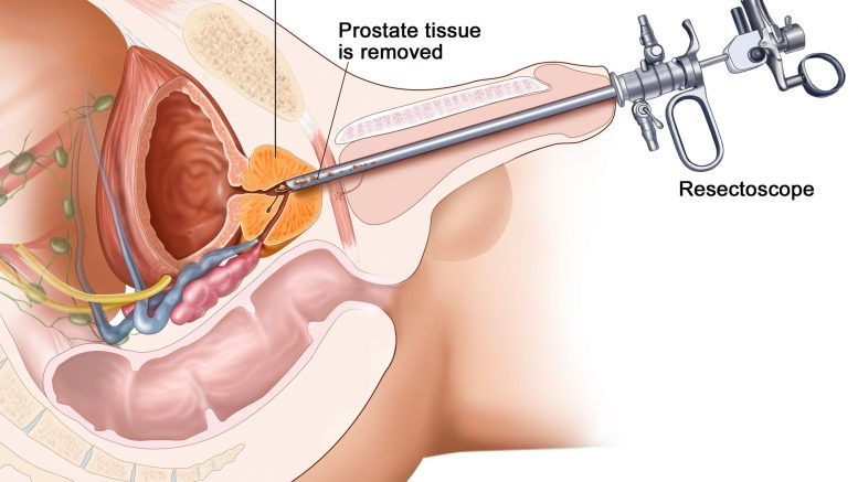 prostate cancer surgery treatment myhealthincheck com