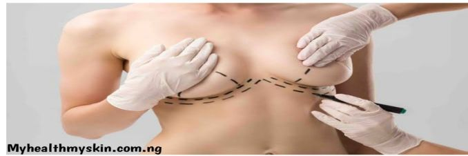 Does pressing breast cause sagging?