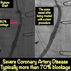 Diagram Of A Heart Bypass Graft Wiring For Two Way Switch One Light Blockage: Explained With Pictures • Myheart