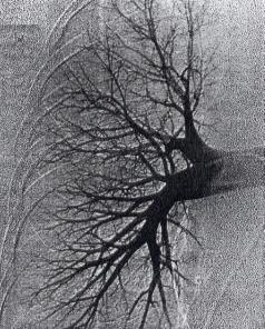 Normal Right Pulmonary Angiogram using digital subtraction angiography.