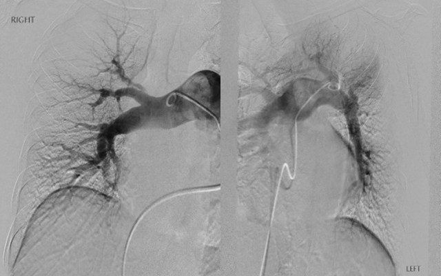 Patient #2: Left and Right angiograms demonstrate filling defects.