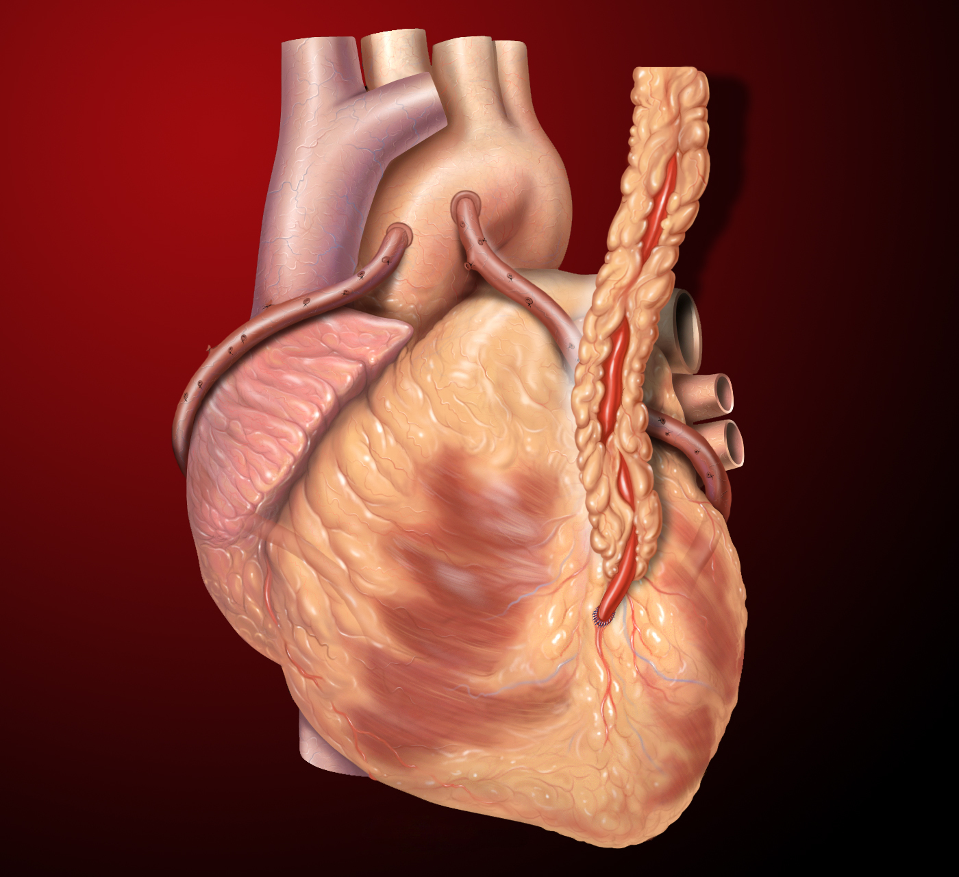 hight resolution of heart bypass surgery explained in incredible pictures
