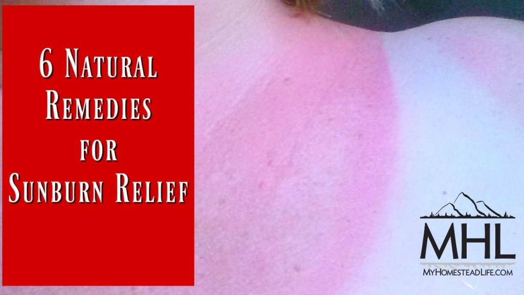 6 Natural Remedies for Sunburn Relief. Take your summer back and be pain-free.
