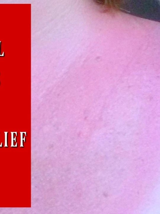 6 Natural Remedies for Sunburn Relief