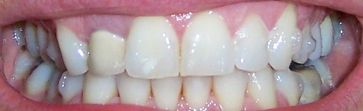 Invisalign before and after pictures - teeth set 29 tilt smile teeth set 29