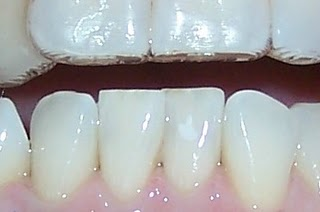 Tooth Whitening With Invisalign