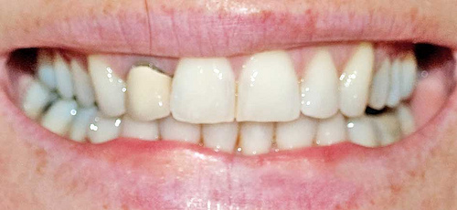 Invisalign Compliance - image of teeth