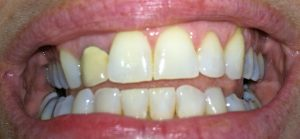 Invisalign with a crown