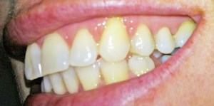 Invisalign Before and After Pictures