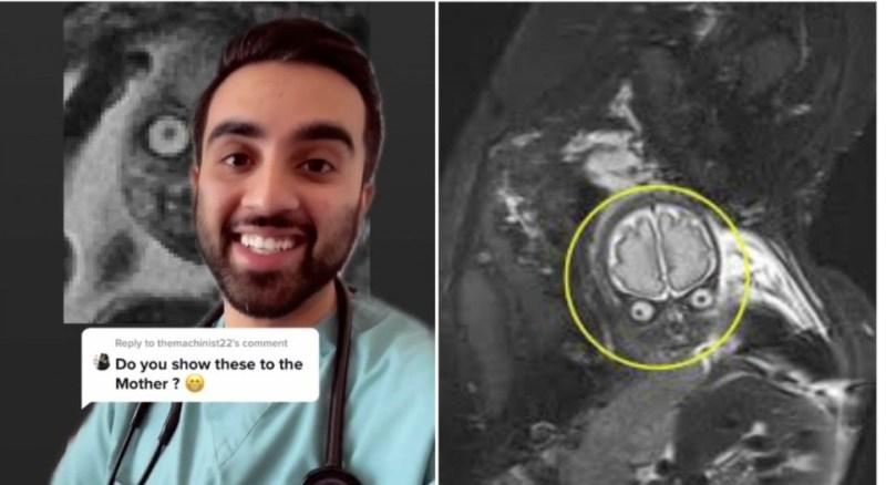 Imej 'ngeri' MRI bayi cetus perdebatan, ada kata macam Mr. Bean