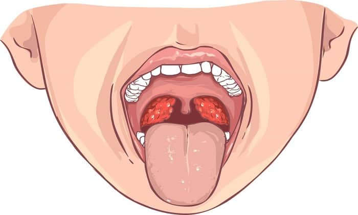 Таблетки от кашля лизобакт