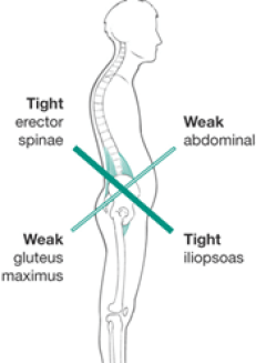 Lower Cross Syndrome happens when you sit a lot. Your hips get tight and you begin to develop lower back pain.