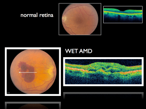 OCTMacular Normal vs Wet_021