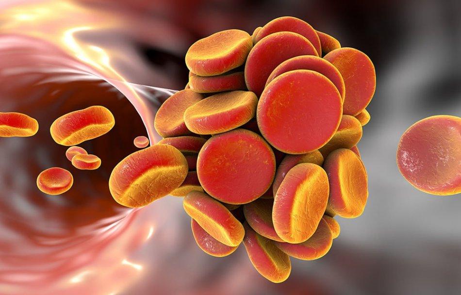 Refluxul gastroesofagian: simptome, tratament și dietă. Refluxul gastroesofagian: Ce este