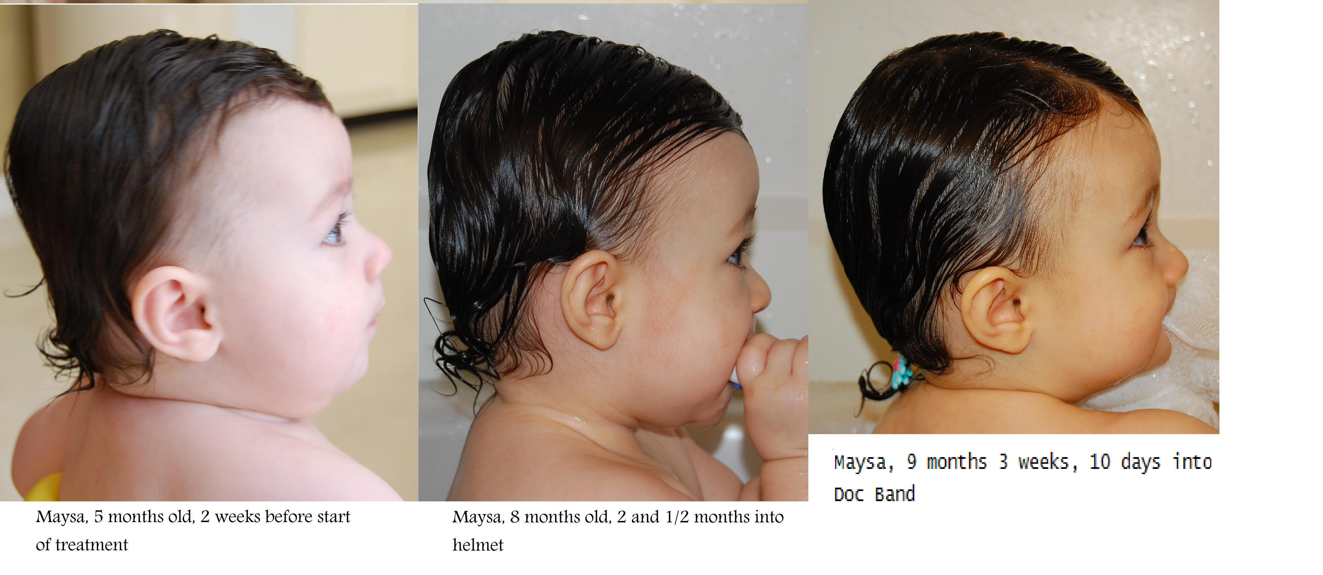 Maysa's Right Profile at 5m, 8m and 9m 3w