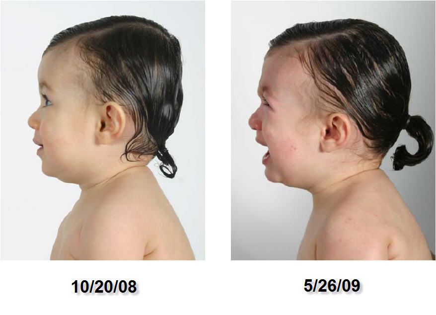 CT photo study left profile 10-20-08 to 05-26-09