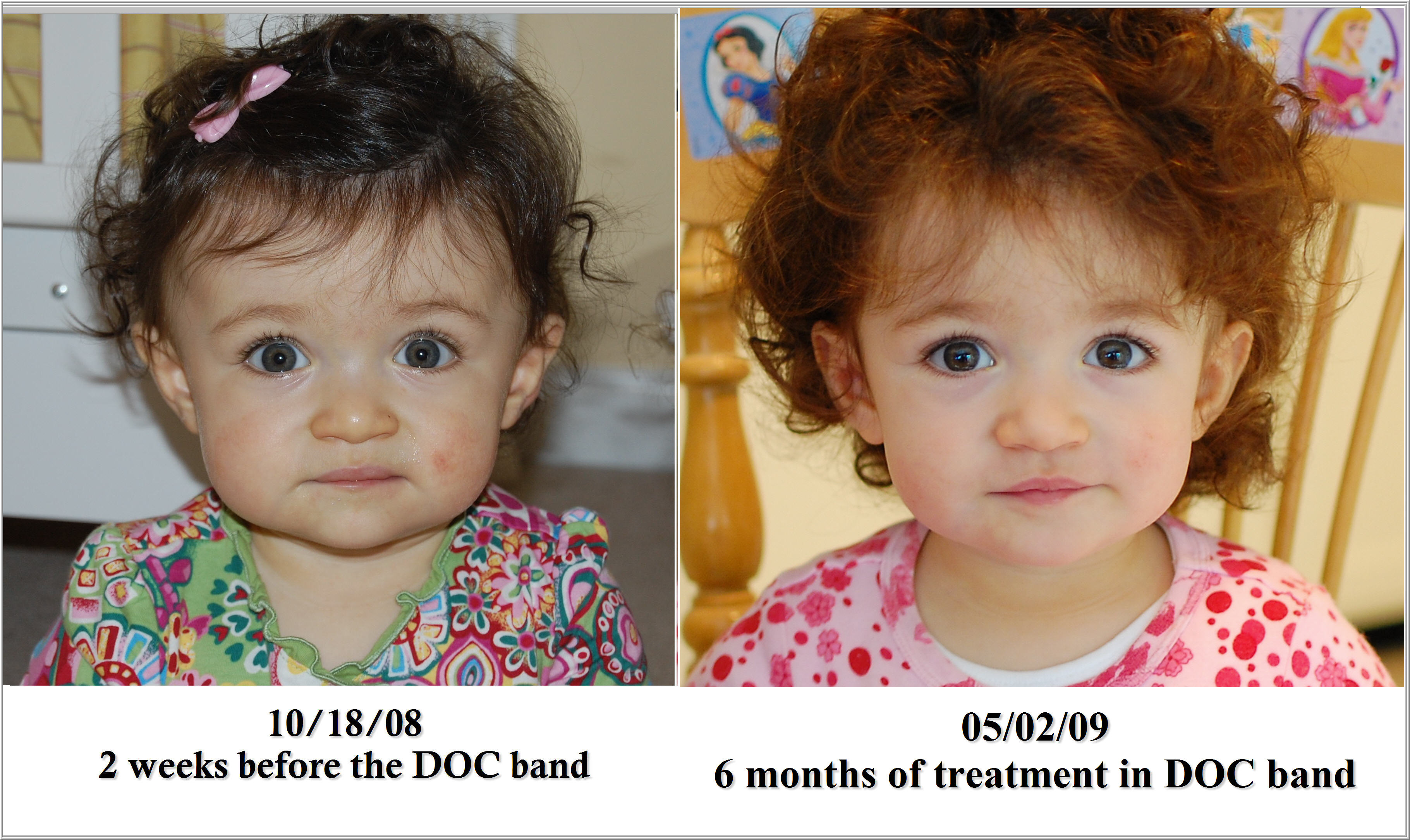 head-width-comparision-3-six-months-in-doc-bands1