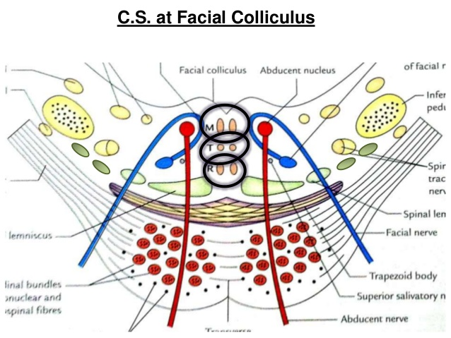 Facial colliculus syndrome picture 743