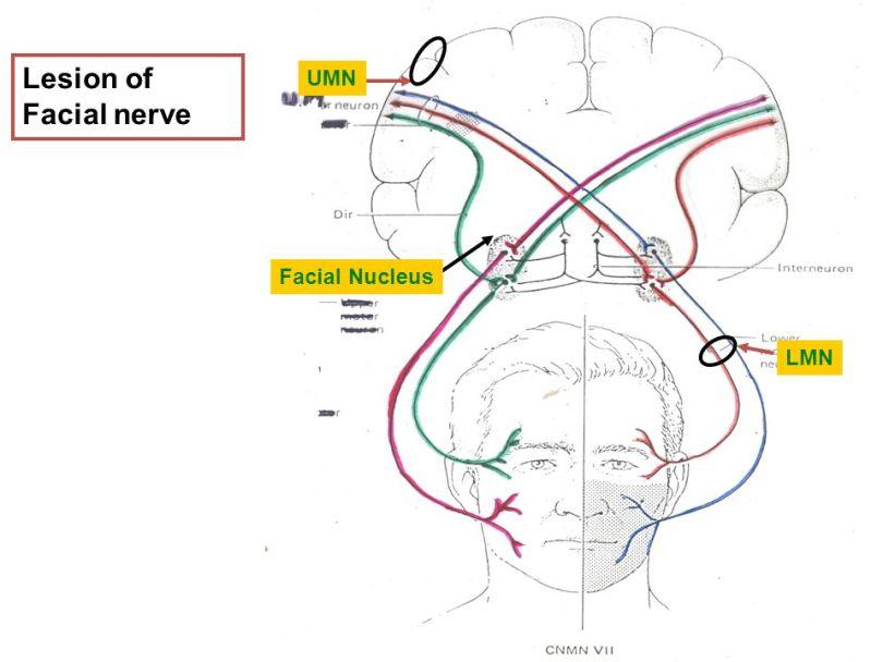 Lesion of Facial nerve UMN Facial Nucleus LMN