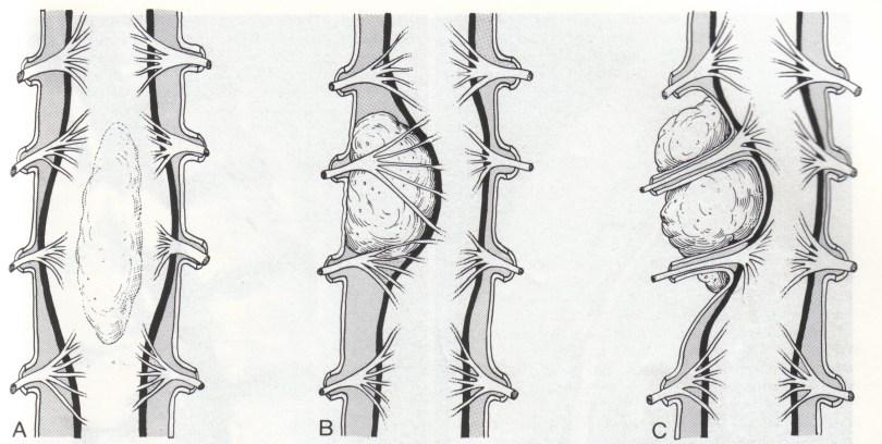 spinal-cord-tumors
