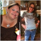Bariatric Surgery - Before & After
