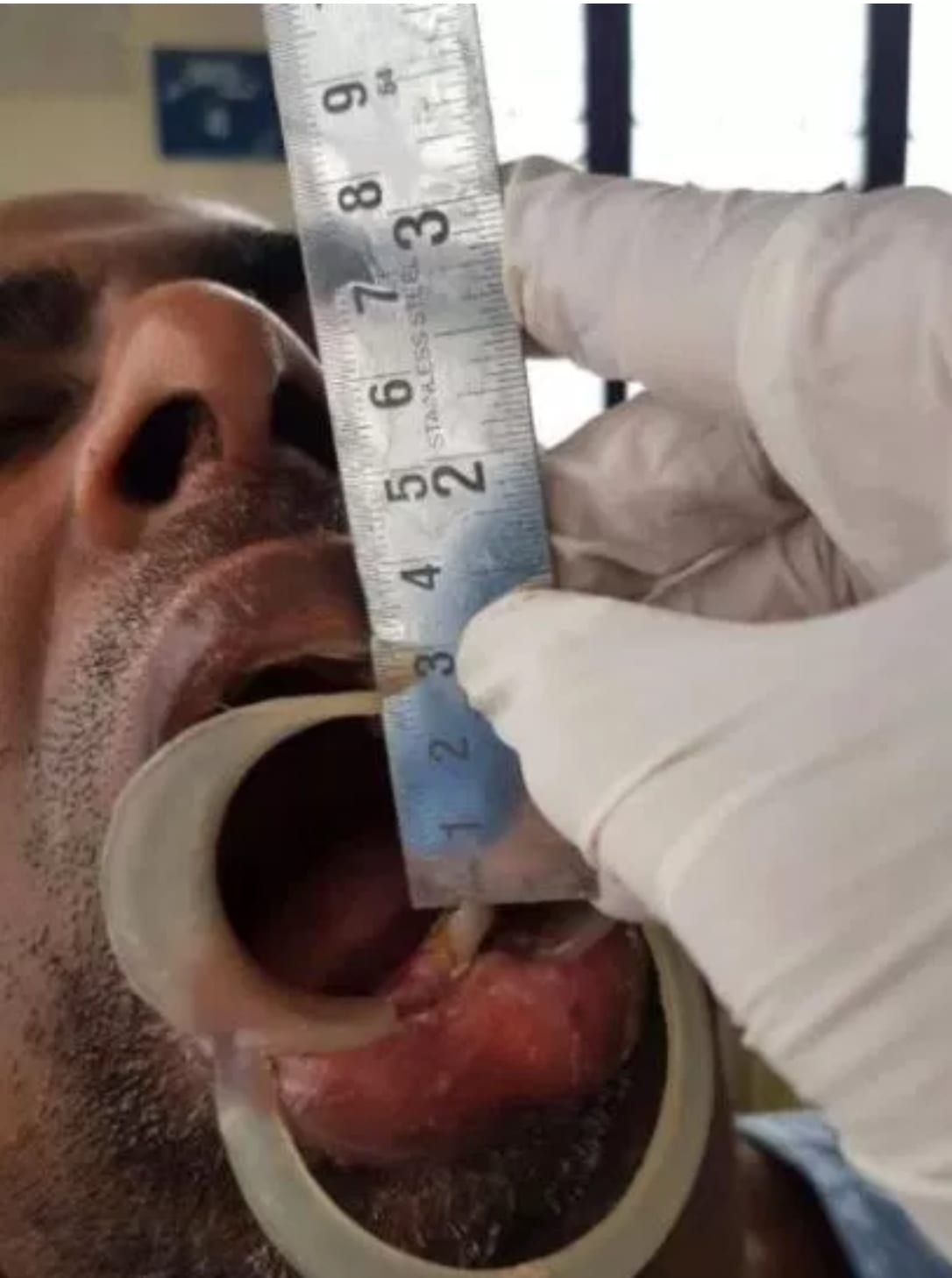 This man's mouth was closed for 39 years, and then this happened…