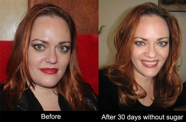 See what happens when you completely stop taking sugar in just 30 days…