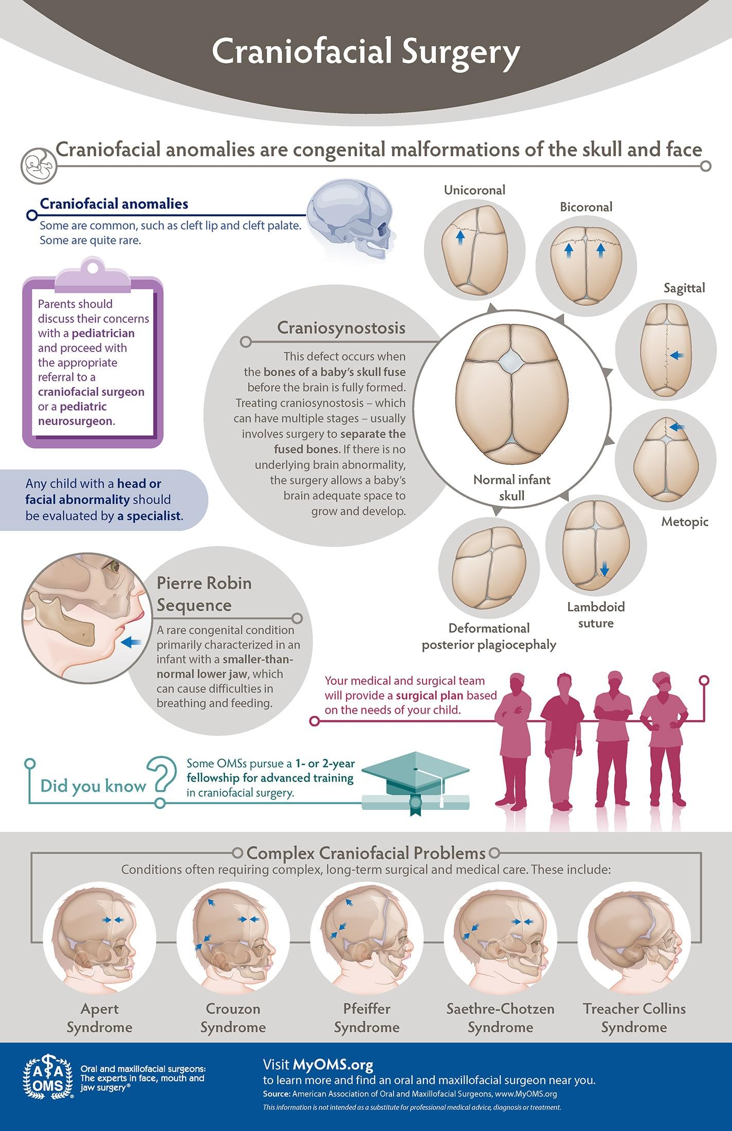 Craniofacial Surgery Infographic