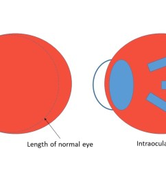 we know that increased levels of myopia are associated with increased risk of myopic pathologies like retinal detachment and myopic maculopathy 1 we also  [ 1200 x 675 Pixel ]